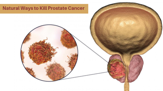 Natural Ways to Kill Prostate Cancer